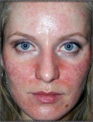 лицо после химического пилинга