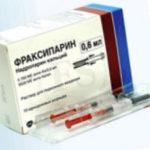 Фраксипарин при беременности