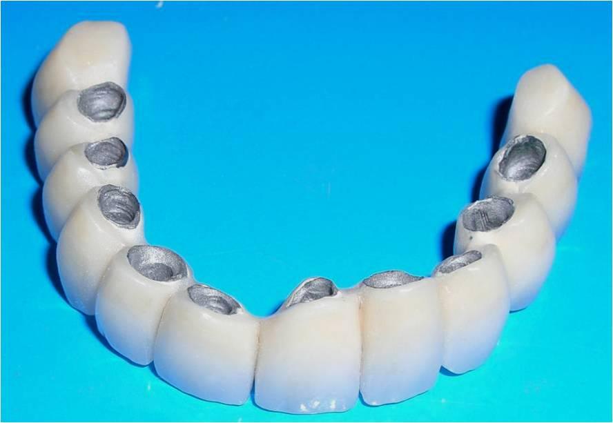 Красивые зубы из металлокерамики – Ваше здоровье и залог успеха