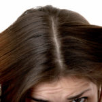 Как перхоть влияет на рост волос?