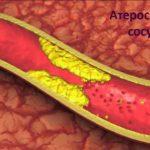 Атеросклероз и его последствия