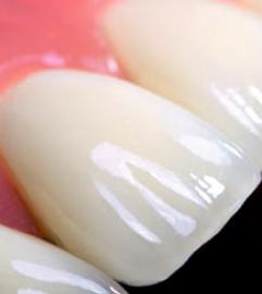 Какие бывают коронки для зубов: обзор популярных вариантов протезирования