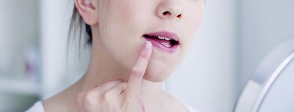 герпес на губах как лечить