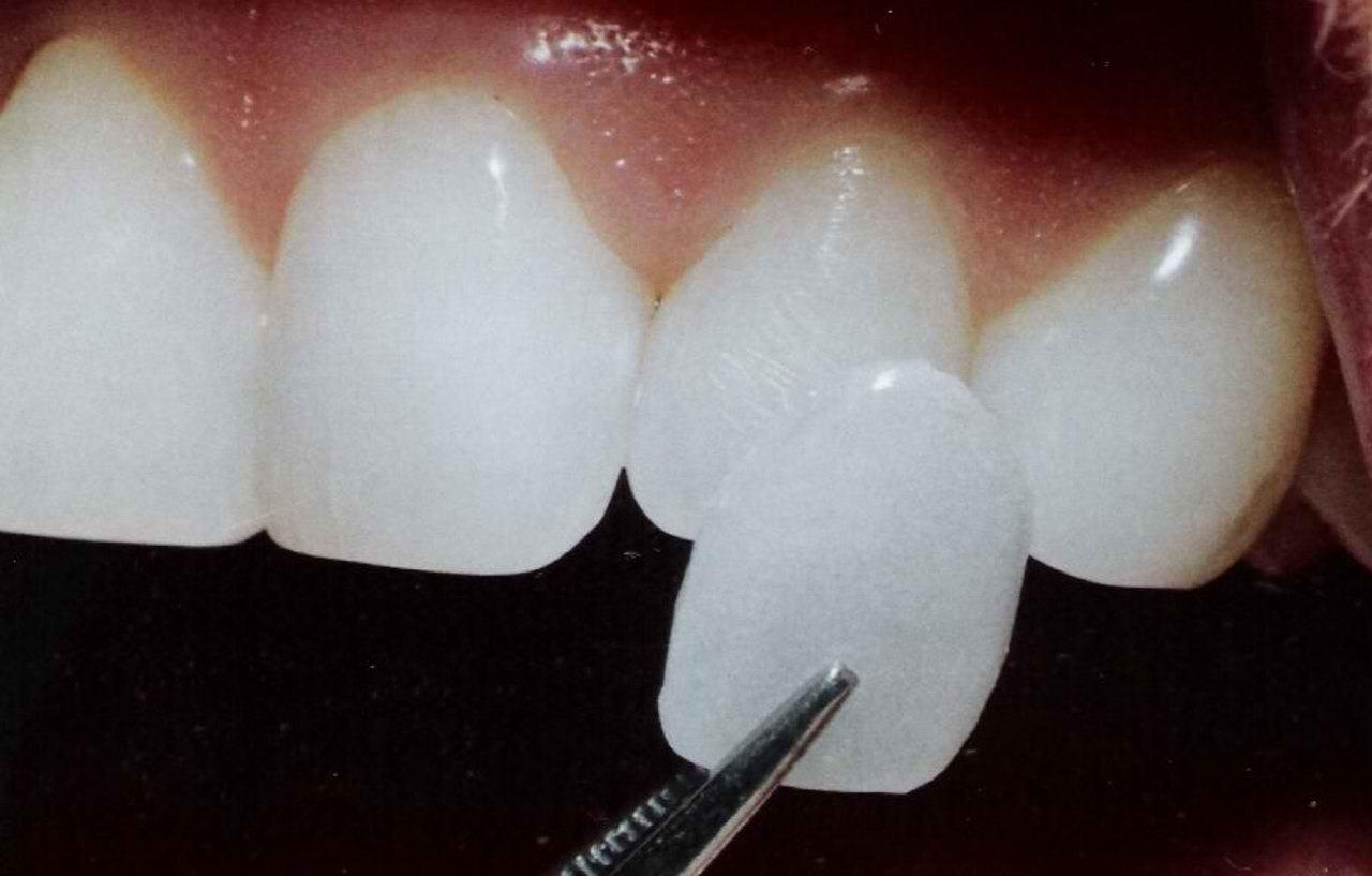 Эстетическая стоматология. Красота ваших зубов